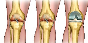 what is arthrosis