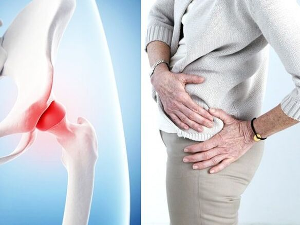 symptoms of arthrosis of the hip joint